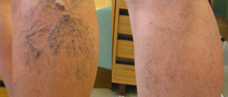 Варикозное расширение вен на ногах лечение